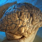 Brain Size May Predict Alzheimer's Risk Years Before Symptoms Appear