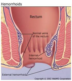 Haemorrhoids diagram